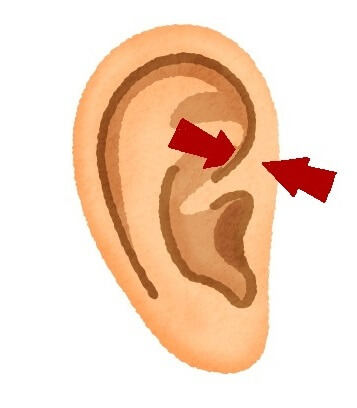 目の痛み・渇きに効いた耳のマッサージポイント